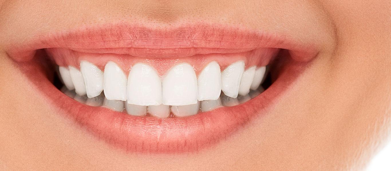 My Dentist Family Dentistry